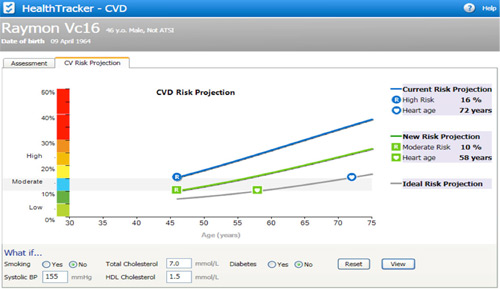 CVD Risk Projection - HealthTracker Screenshot